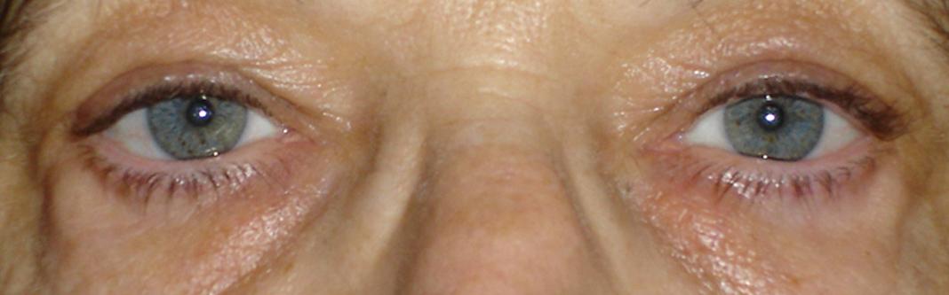 chirurgie esthétique du visage à Saint-Malo / Saint-Grégoire (Rennes) : après