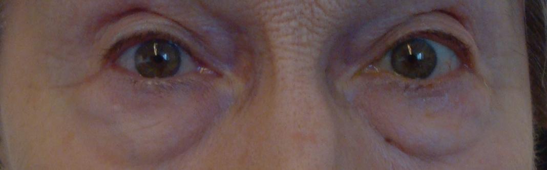 chirurgie esthétique du visage à Saint-Malo / Saint-Grégoire (Rennes) : avant
